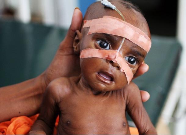 소말리아에서 영양실조 걸린 아이의 치료