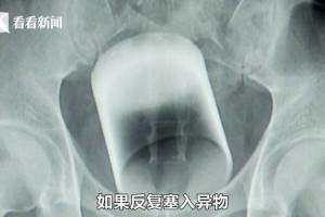 ▲ 항문에 유리컵이 박힌 남성의 X레이 사진. 이미지 출처 - 미러