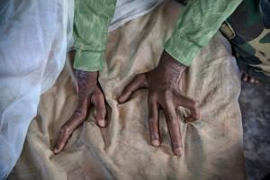 여섯 손가락