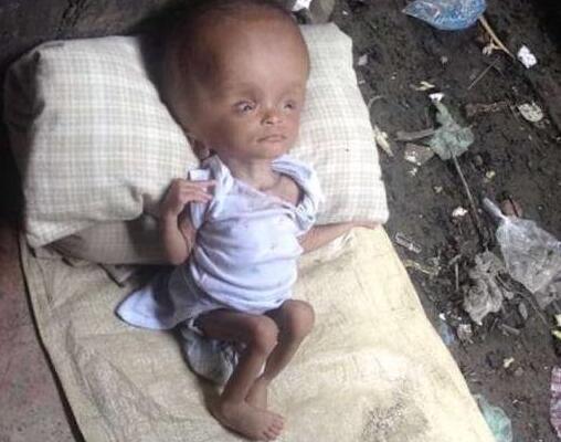 수뇌증 걸린 아기