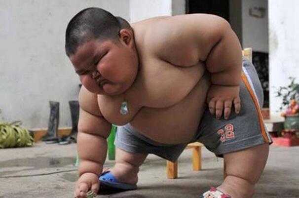 몸무게 60kg인 3살 아기