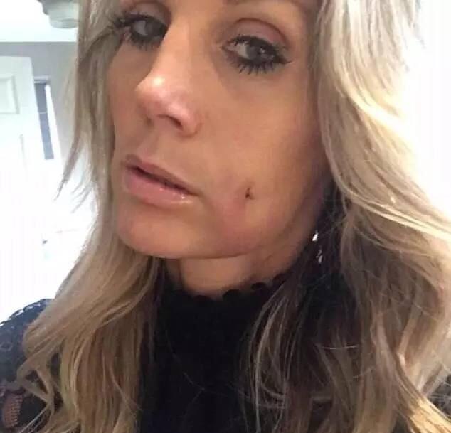 보조개를 얻기 위해 얼굴에 구멍 뚫은 여성