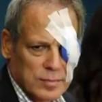 ▲ 파울볼에 맞아 왼쪽 눈이 실명된 존 제이 루스. 이미지 - 유튜브 캡쳐