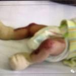 중국  피부결실 아기 출처 - 'Aihami'