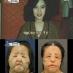 '선풍기 아줌마'로 불리던 한혜경 씨가 15일 사망했다. 사진=채널A '그때 그 사람' 캡처