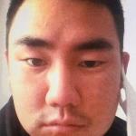 지난 2015년 5월, 같은 팀 선배 이택근에게 야구 방망이로 폭행당한 후 얼굴이 심하게 부어올라 있던 문우람의 모습. 이미지=중앙일보